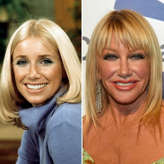 14656306 1125108304252123 1665885411504361678 n 1 - Suzanne Somers Secret to Her Successful 40-Year Marriage & What Could Break it