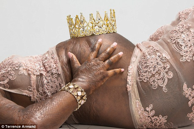 38d095cf00000578 3807913 image a 15 1474915456951 - 'I am a queen!' Mother Who Survived Third Degree Burns Puts Pregnant Belly On Display In Maternity Shoot 15 Years