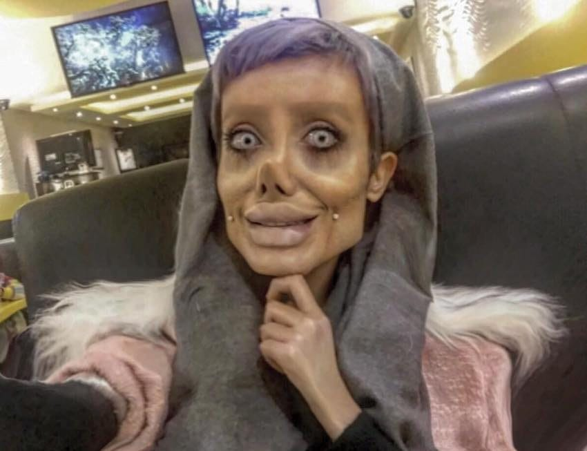 failed attempt to look like angelina jolie 4 - A Teenager Said She Had Plastic Surgeries 50 Times To Look Like Angelina Jolie, But Wasn't True After All