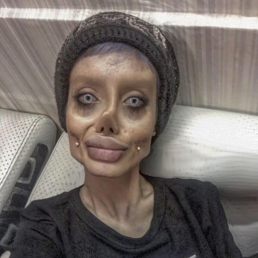 failed attempt to look like angelina jolie 5 - Jovem que disse ter feito 50 cirurgias plásticas para parecer-se com Angelina Jolie volta atrás e explica tudo
