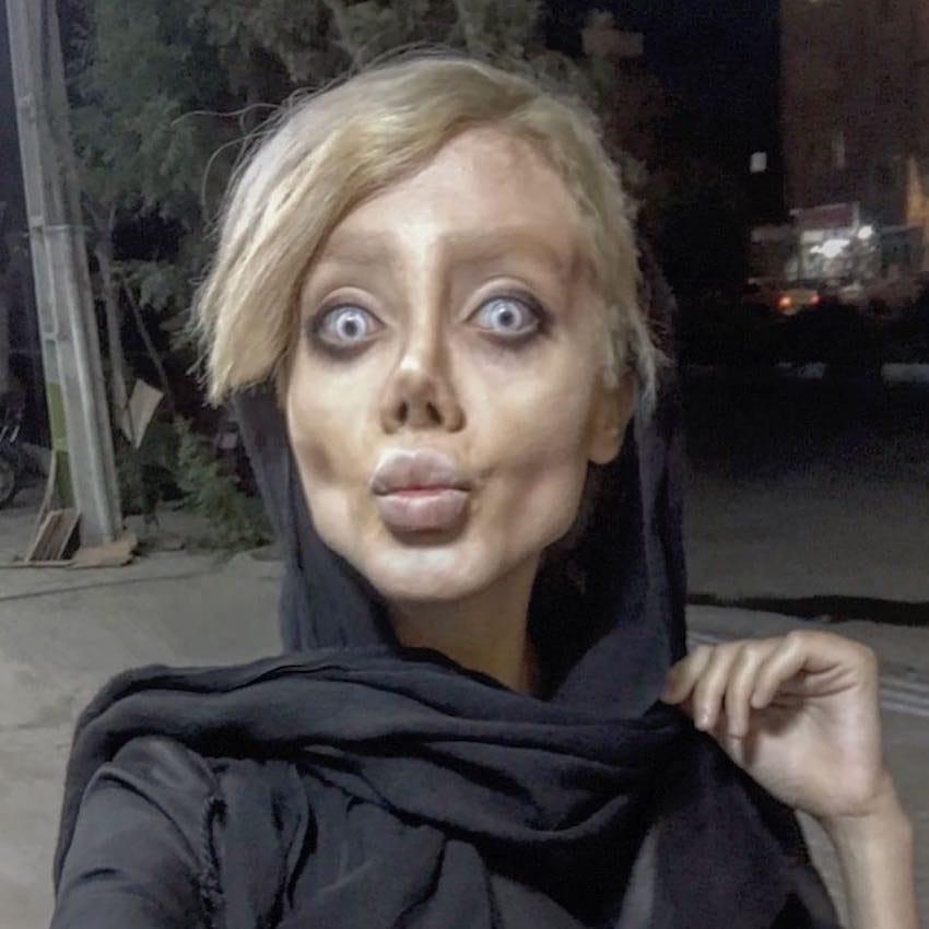 failed attempt to look like angelina jolie 6 - Jovem que disse ter feito 50 cirurgias plásticas para parecer-se com Angelina Jolie volta atrás e explica tudo
