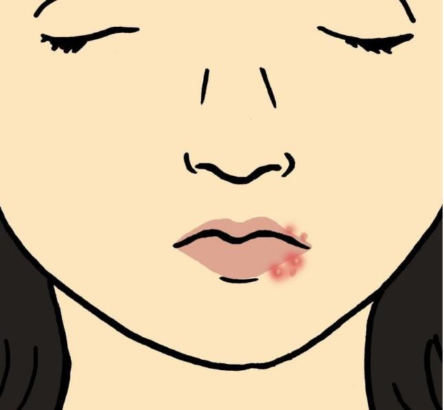 img 5a472ced8a303 - 10 fatos que todos deveriam saber sobre a herpes labial