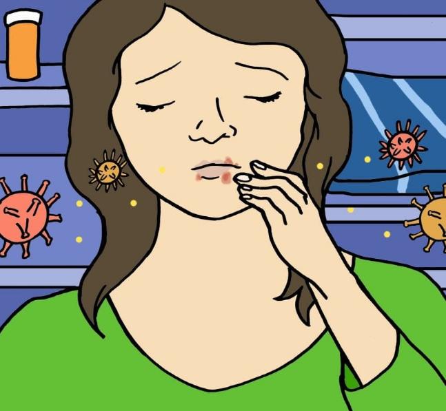 img 5a472d0dd58e3 - 10 fatos que todos deveriam saber sobre a herpes labial