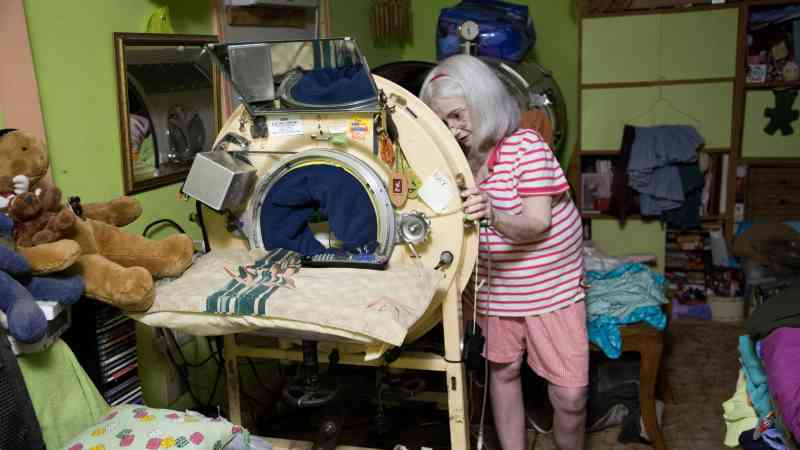 negative pressure ventilators 3 - One of Three Iron Lungs Users In The United States