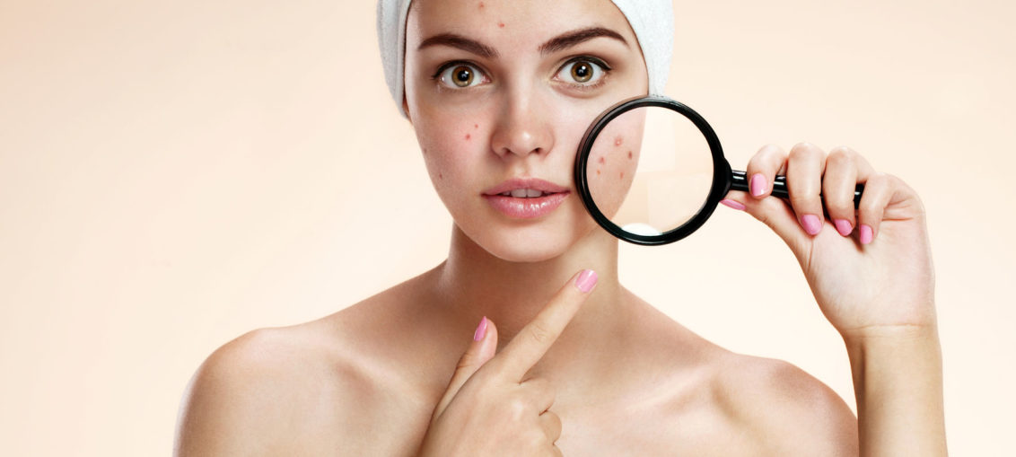 oily skin or acne advice 1132x509 - 9 Señales de advertencia de desequilibrio hormonal que pueden producir manchas faciales
