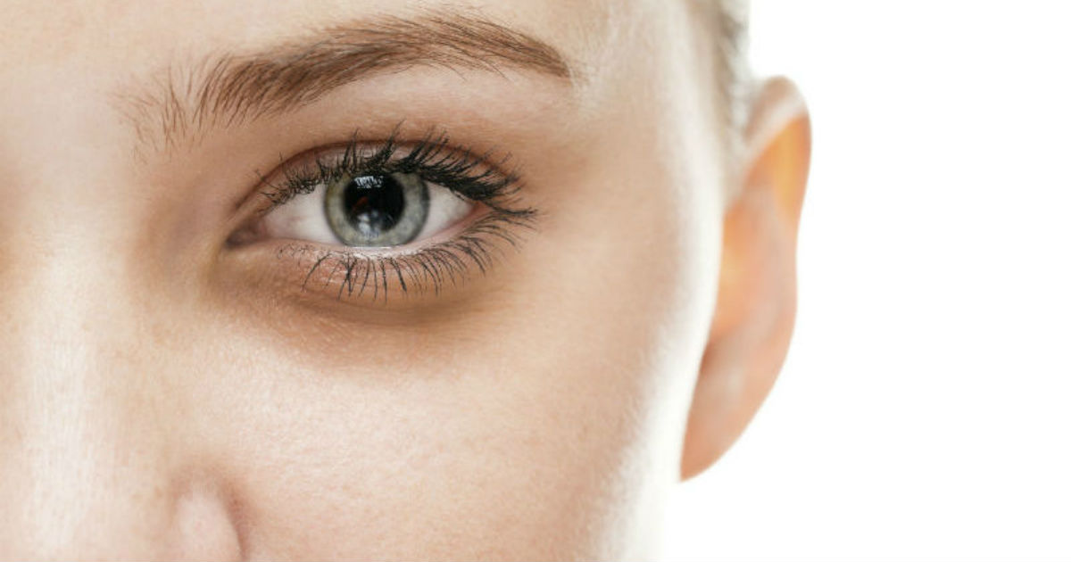 ojeras1 - 9 Señales de advertencia de desequilibrio hormonal que pueden producir manchas faciales