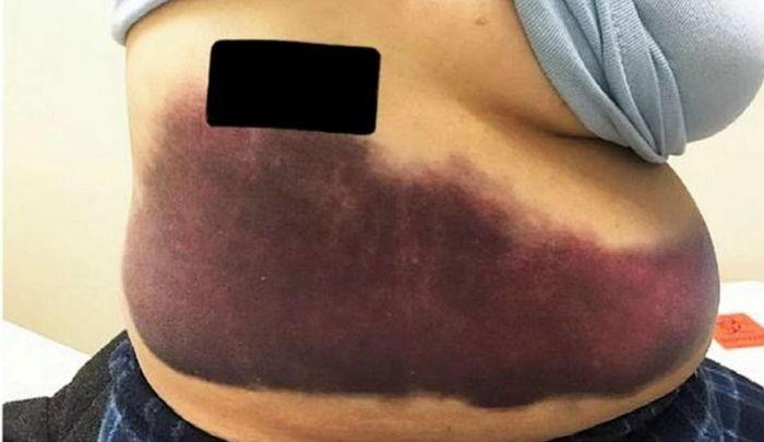 1 388 - 독감 때문에 기침 하다가 '갈비뼈' 부러진 여성
