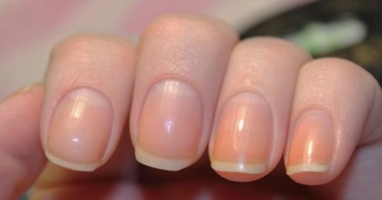 598096cabc0a2 crop - Descubra o que significa a meia-lua nas unhas e o que isso reflete na sua saúde