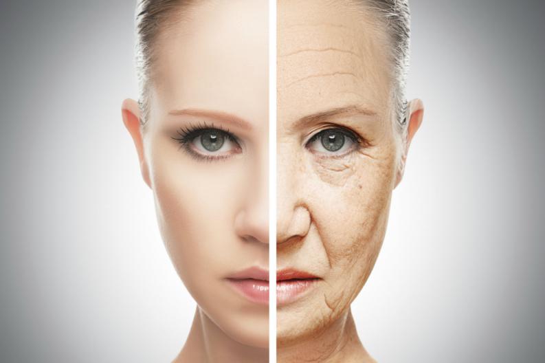 7 senales de envejecimiento de la piel producidas por el sol 7 - Los moretones sin motivo aparente, son una señal de alerta