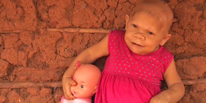 9 baby maria audenete ferreira do nascimento 660x330 - Parece un bebé de 9 meses, pero en realidad debido a una condición de nacimiento se ve igual a sus 36 años.