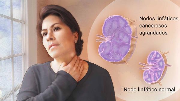 descarga 2 - 9 señales del cuerpo que pueden evitar el diagnóstico tardío de los linfomas