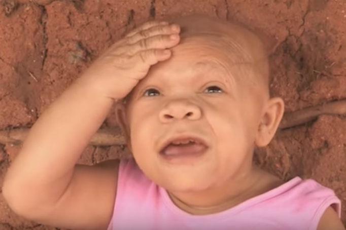 fotorcreated 1479202213 - Parece un bebé de 9 meses, pero en realidad debido a una condición de nacimiento se ve igual a sus 36 años.