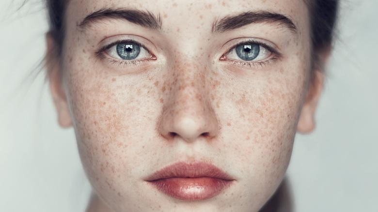 freckles are beautiful - 8 Anomalias genéticas que fazem as pessoas parecerem muito mais atraentes e bonitas
