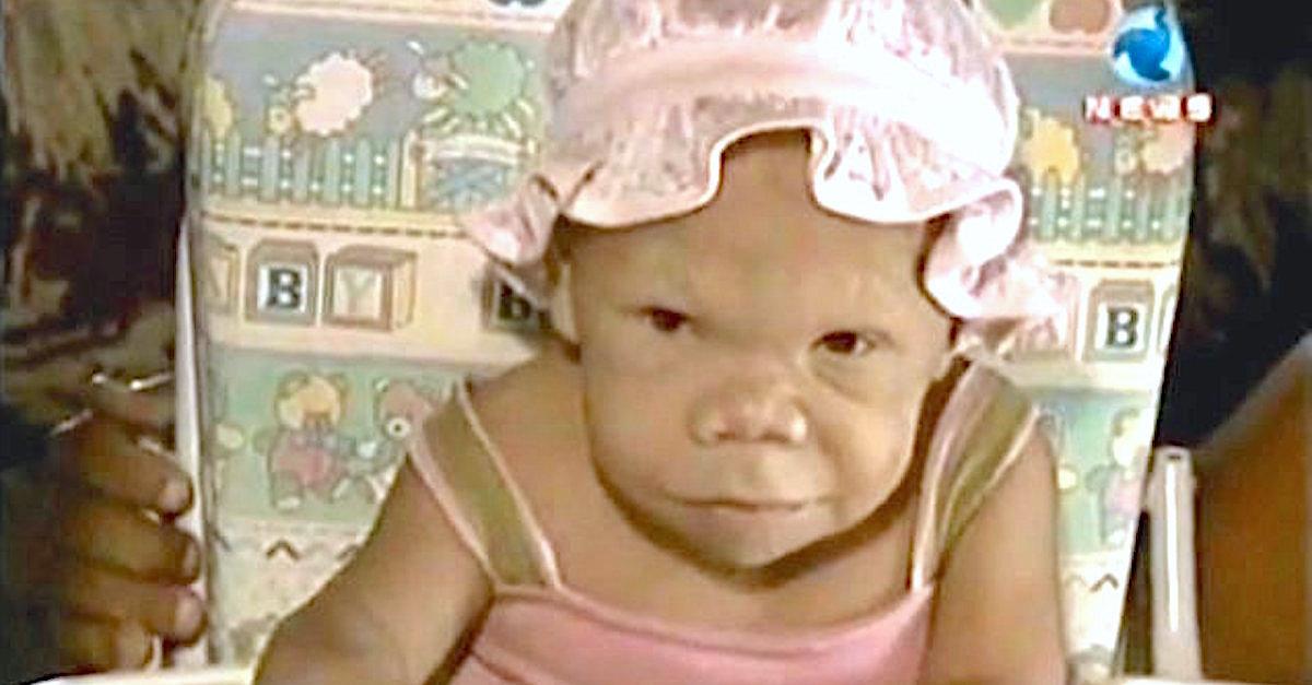 maria - Parece un bebé de 9 meses, pero en realidad debido a una condición de nacimiento se ve igual a sus 36 años.