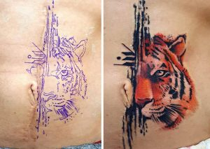 scars tattoo cover up 71 590b311e0cd72  605 300x213 - 30 Tattoos That Turn Scars Into Beautiful Works Of Art