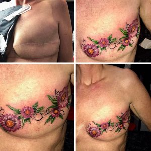 scars tattoo cover up 92 590c312dba441  605 300x300 - 30 Tattoos That Turn Scars Into Beautiful Works Of Art