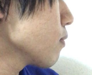 アデノイド 顔貌 あご에 대한 이미지 검색결과