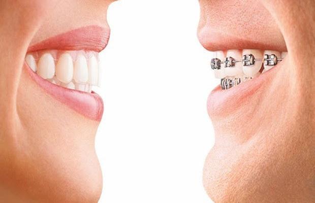 q4 1 - 치아교정기 해본 사람들만 아는 고충  8가지
