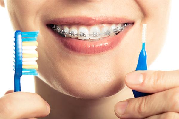 q5 4 - 치아교정기 해본 사람들만 아는 고충  8가지