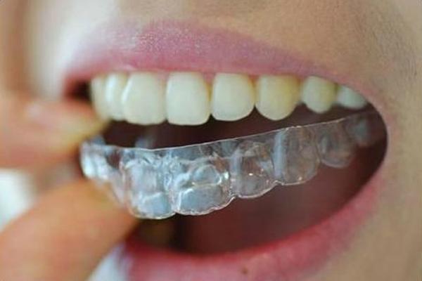 q6 2 - 치아교정기 해본 사람들만 아는 고충  8가지