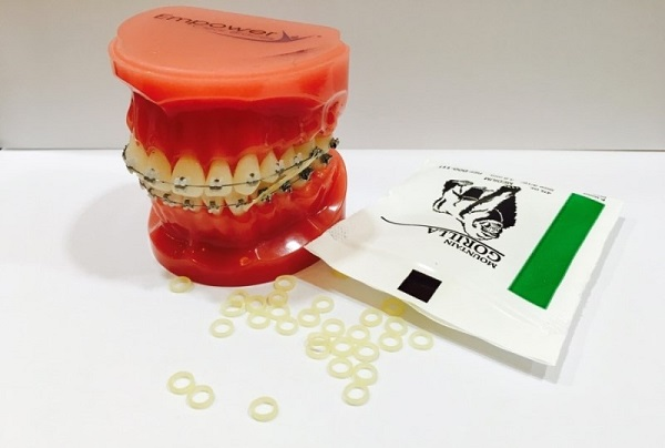 q7 2 - 치아교정기 해본 사람들만 아는 고충  8가지