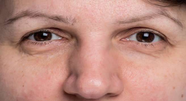 1 thehealthsite com  - Check Out These Small Changes On Your Face That You Must Never Overlook
