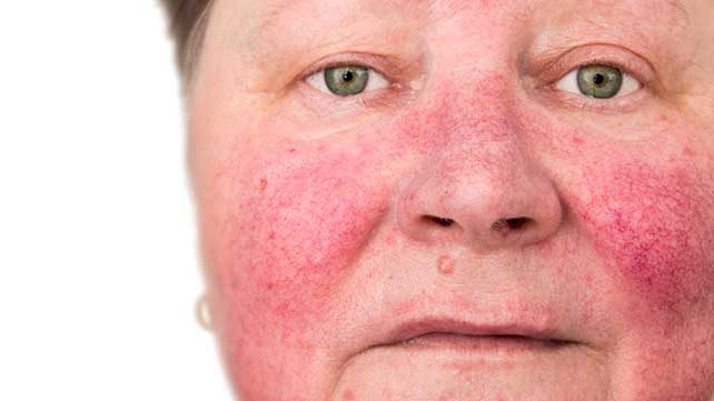 6 healthline - Check Out These Small Changes On Your Face That You Must Never Overlook