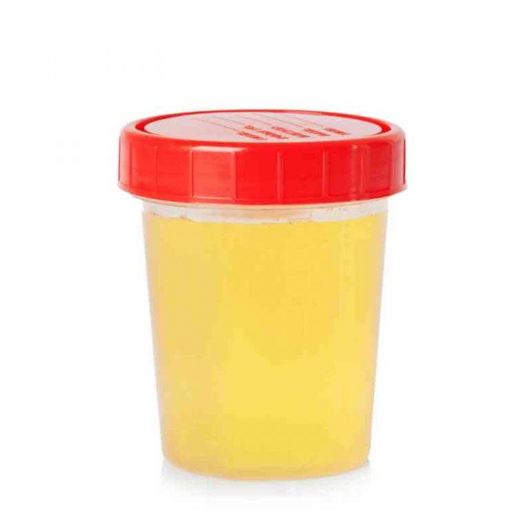 color-of-urine-indicates-your-health-4