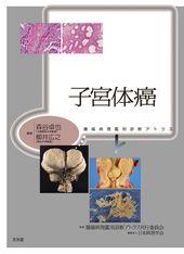 子宮体癌のカバー写真