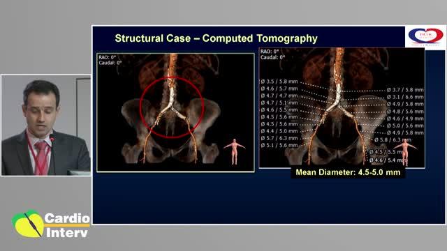 05 - Palestra 04- Cuidados especiais em pacientes com anatomias complexas. - Pré-CardioInterv