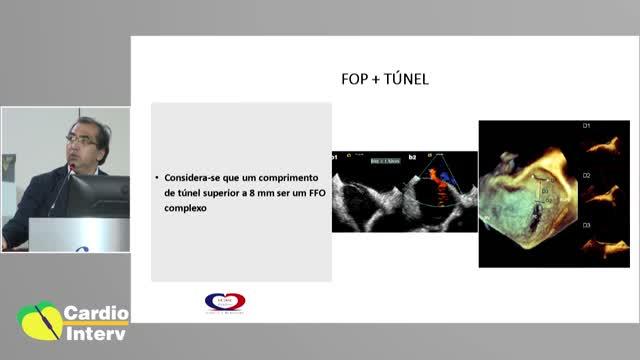 26 - Palestra 07: Estado Atual do Fechamento do FOP; Desde o Diagnóstico até o Implante da Prótese.