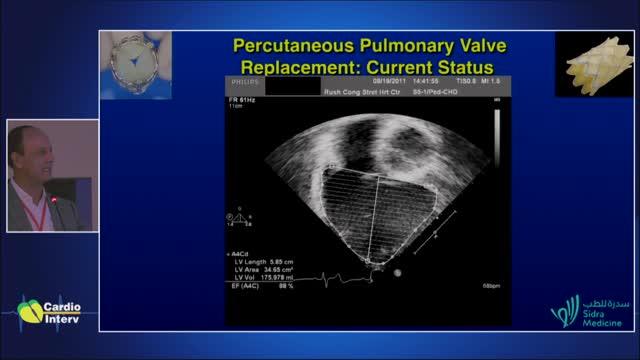 33 - Palestra 16: Implante de válvula na artéria pulmonar
