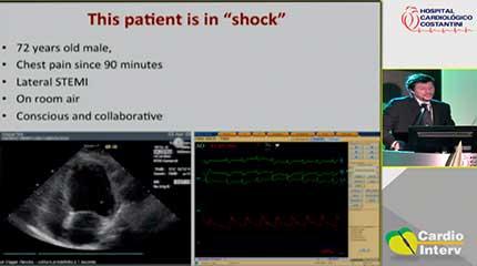 Palestra 12 - Quando e por que usar assistência circulatória na angioplastia coronariana