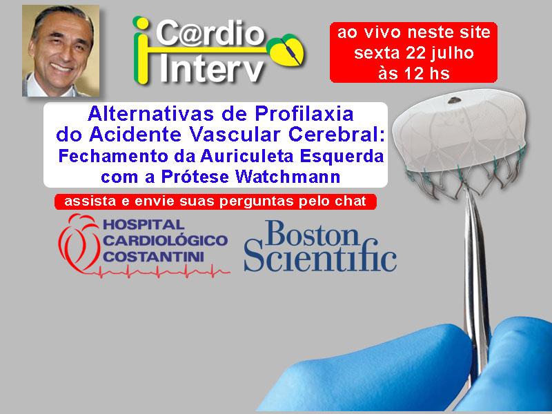 Alternativas de Profilaxia do Acidente Vascular Cerebral: <br>Fechamento da Auriculeta Esquerda com a Prótese Watchmann