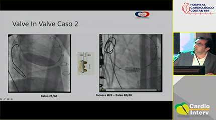 Palestra 20 - Estado atual do tratamento percutâneo da válvula tricúspide