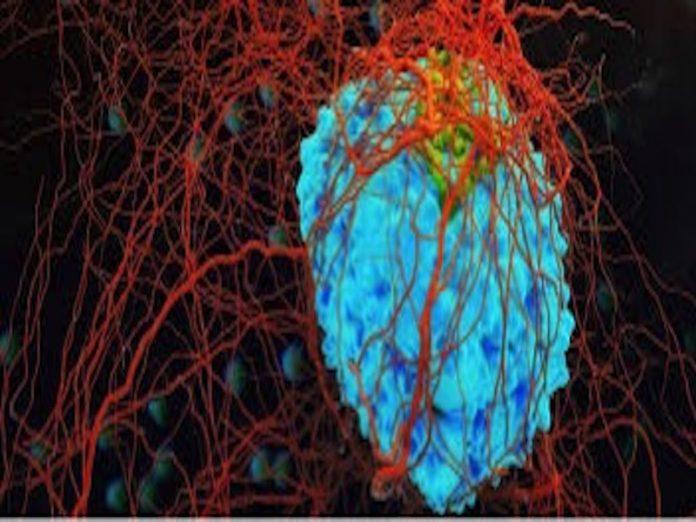 Oncology Experts seeks improved Breast, Cervical Cancer Care