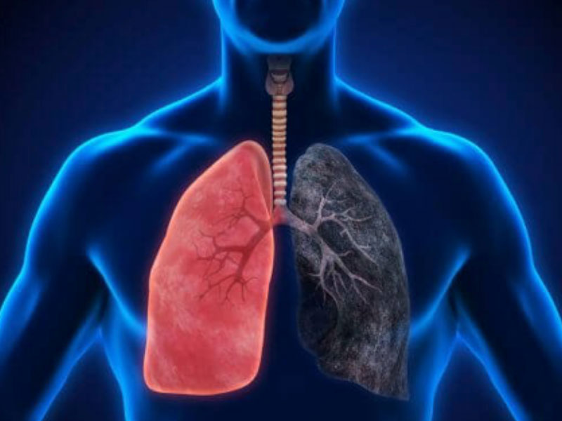 Organisation Unveils Project against Pneumonia in Lagos, Jigawa - THISDAY Newspapers