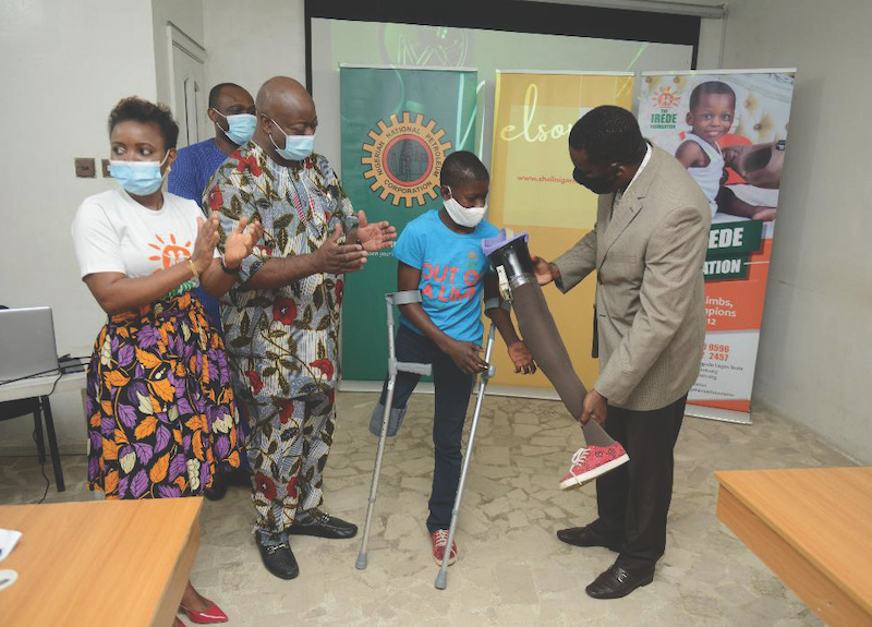 Irede Foundation Presents Prosthetic Limbs to Beneficiaries