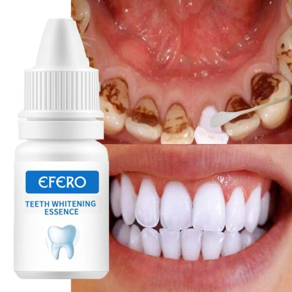 EFERO Teeth Whitening Serum Gel Dental Oral Hygiene Effective Remove Stains Plaque Teeth Cleaning Essence Dental Care Toothpaste Electric Toothbrush Electronics Grooming Electronics Brand Name: efero