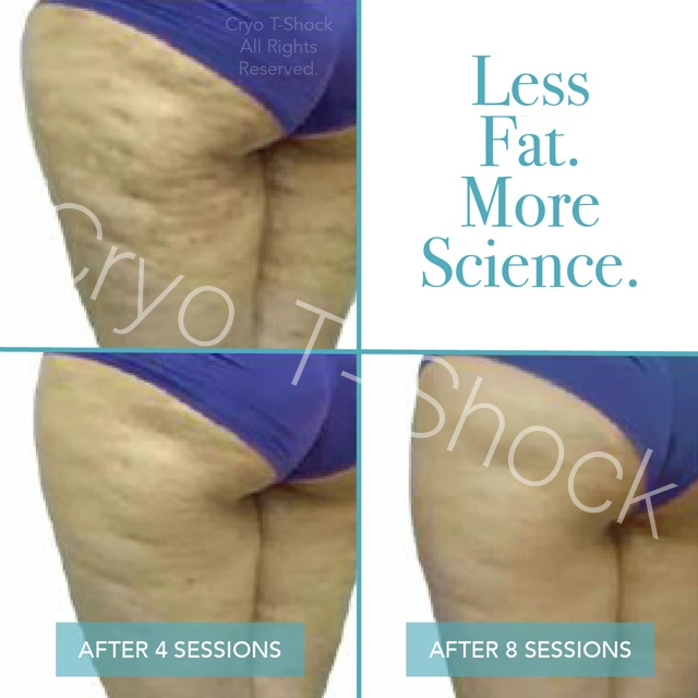 Cellulite Regression1