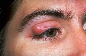 blepharitis2.jpg