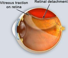 retinal detachment.jpg
