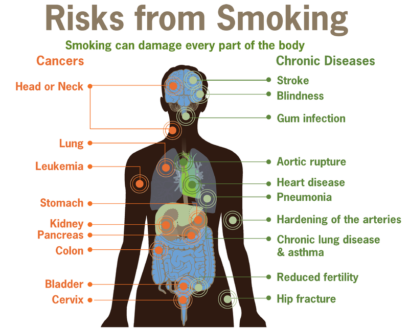 800px-Risks_form_smoking-smoking_can_damage_every_part_of_the_body.png