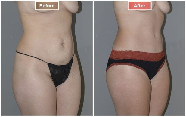 Liposuction treament before and after