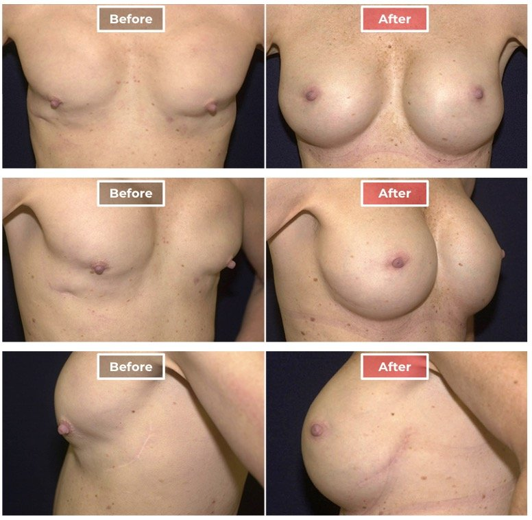 Breast Augmentation Revision - Before and After - 1