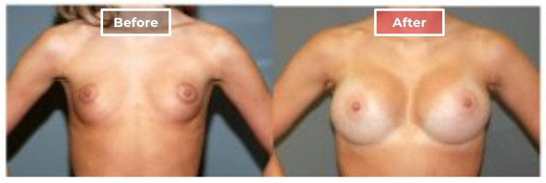 Breast Augmentation - before and after - 14