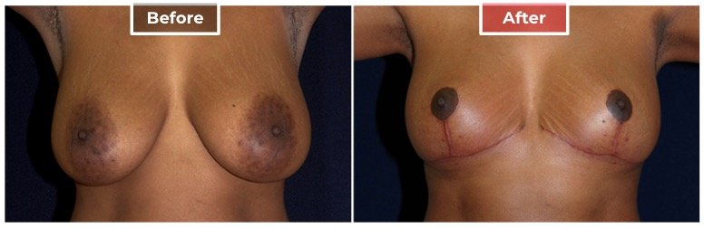 Breast Reduction - Before and After - 7