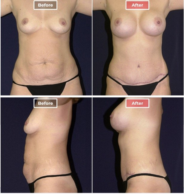 Mommy Makeover Surgery  before and after - 4