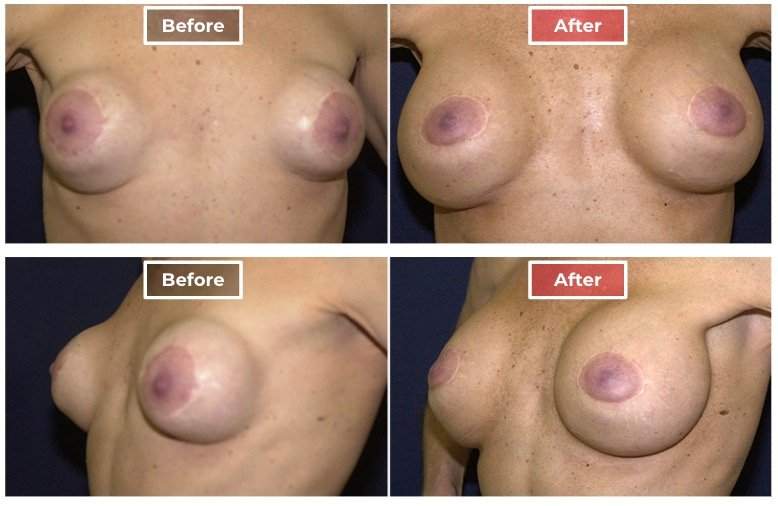 Breast Augmentation Revision - Before and After - 2