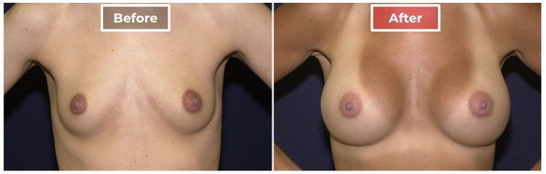 Breast Augmentation - before and after - 7